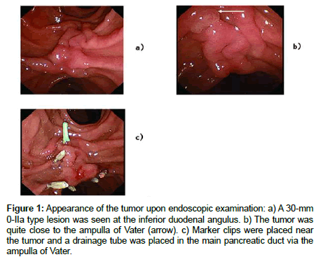 clinical-case-reports-endoscopic-examination