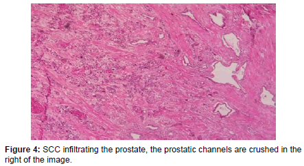 clinical-case-reports-infiltrating-prostate