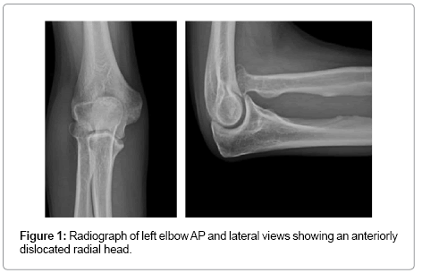 clinical-case-reports-left-elbow
