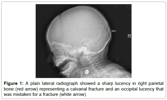 clinical-case-reports-plain-lateral-radiograph