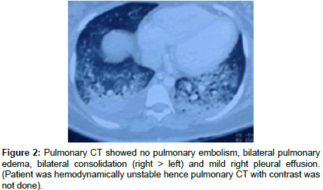 clinical-case-reports-pulmonary-embolism