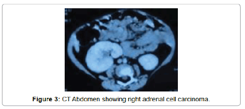 clinical-case-reports-right-adrenal