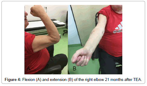 clinical-case-reports-right-elbow