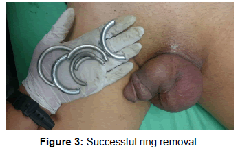 clinical-case-reports-ring-removal