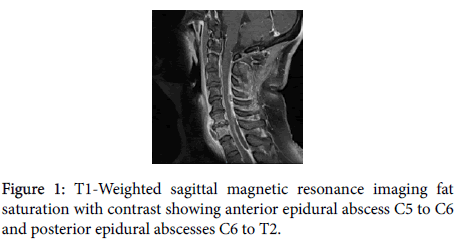 clinical-case-reports-sagittal-magnetic-resonance