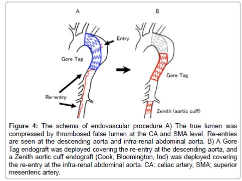 schema-endovascular-procedure