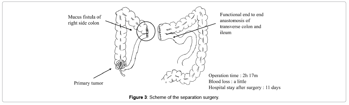 clinical-case-reports-separation-surgery