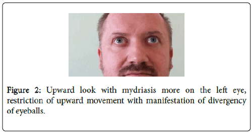 clinical-case-reports-upward-movement