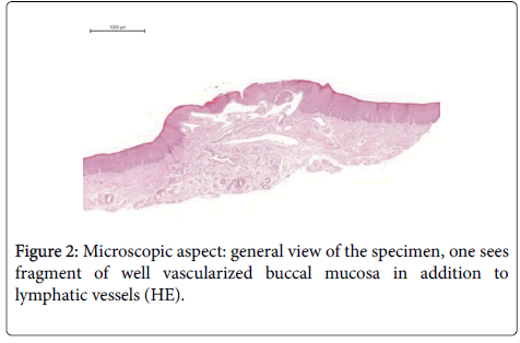 clinical-case-reports-vascularized-buccal-mucosa