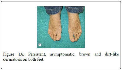 clinical-dermatology-brown-dirt-like