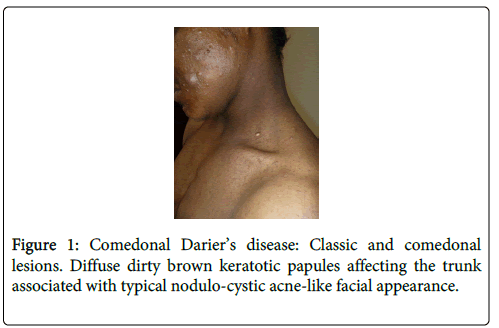 clinical-dermatology-dirty-brown