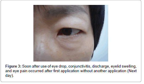 clinical-dermatology-eyelid-swelling