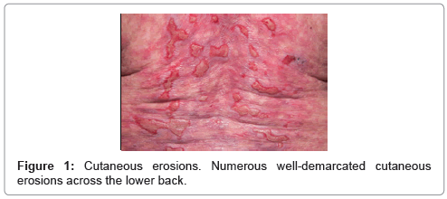 clinical-dermatology-lower-back