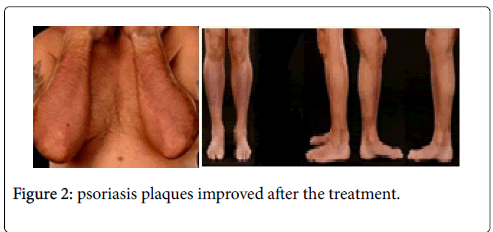 clinical-dermatology-plaques-improved