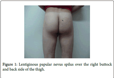 clinical-dermatology-right-buttock
