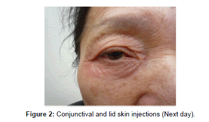 clinical-dermatology-skin-injections