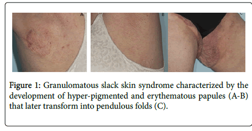 clinical-dermatology-skin-syndrome