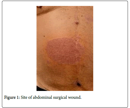clinical-dermatology-surgical-wound
