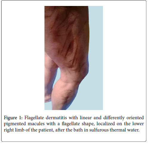 clinical-dermatology-thermal-water