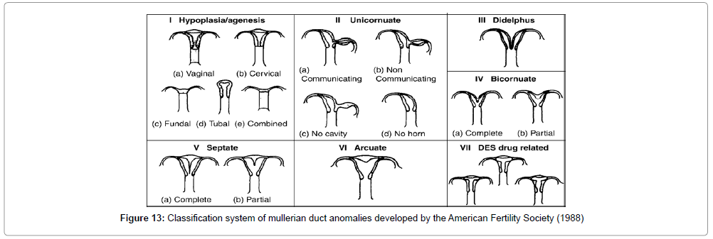 3D Ultrasound Assessment of the Uterus: Why an Accuracy