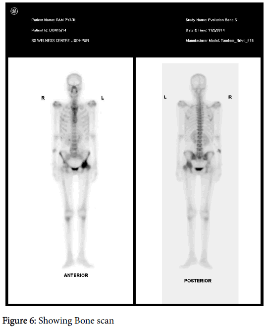 clinical-experimental-dermatology-Bone-scan