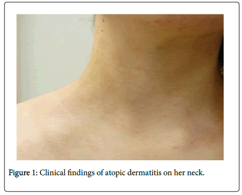 clinical-experimental-dermatology-Clinical-findings