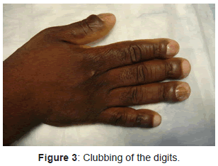 clinical-experimental-dermatology-Clubbing-digits