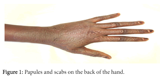 clinical-experimental-dermatology-Papules-scabs-back-hand