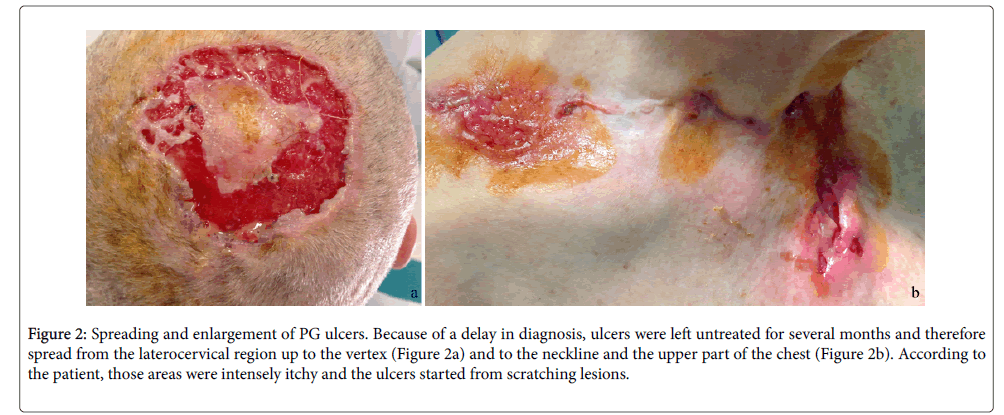 clinical-experimental-dermatology-Spreading-enlargement