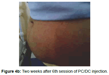 Evaluation of the efficacy of injection lipolysis using clinical experimental dermatology two weeks after solutioingenieria Image collections