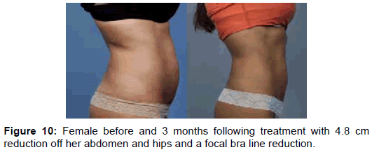 clinical-experimental-dermatology-bra-line-reduction