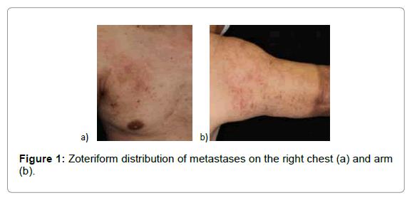 clinical-experimental-dermatology-distribution-metastases