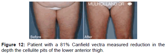 clinical-experimental-dermatology-lower-anterior-thigh