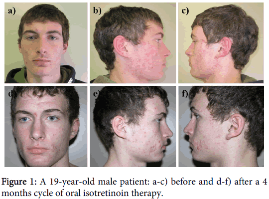 clinical-experimental-dermatology-oral-isotretinoin-therapy