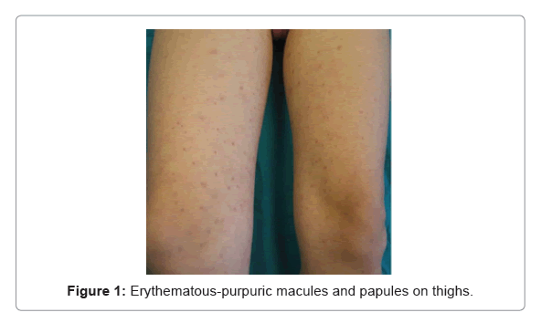 clinical-experimental-dermatology-purpuric-macules