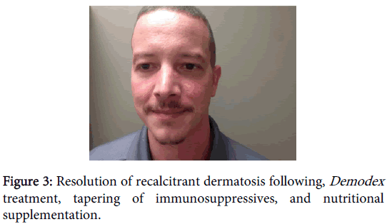 clinical-experimental-dermatology-recalcitrant-dermatosis