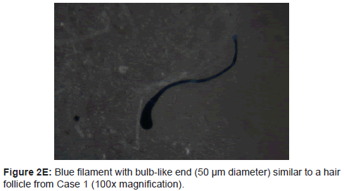 clinical-experimental-dermatology-research-Blue-filament