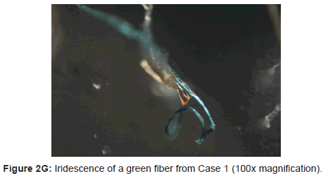 clinical-experimental-dermatology-research-green-fiber