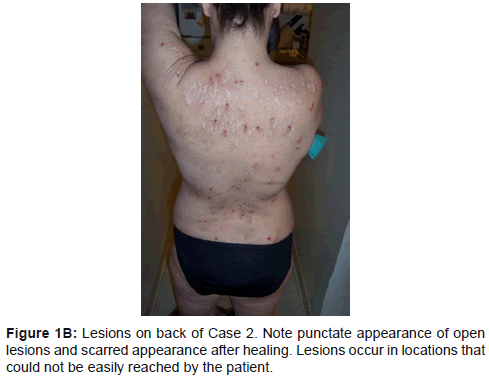 clinical-experimental-dermatology-research-punctate-appearance