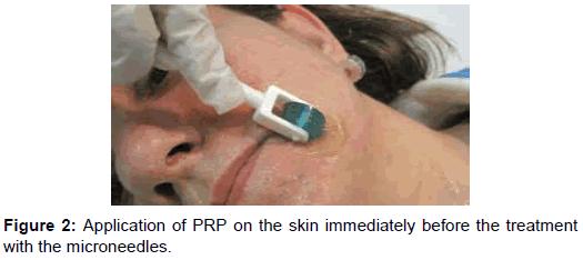 clinical-experimental-dermatology-skin-immediately