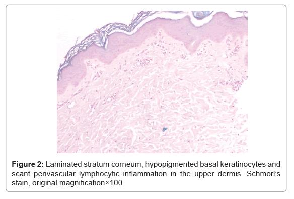 clinical-experimental-dermatology-stratum-corneum