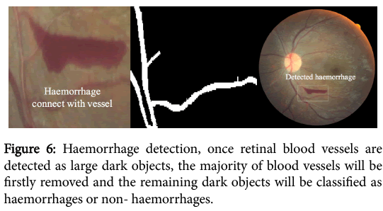 clinical-experimental-ophthalmology-Haemorrhage-detection-retinal-blood