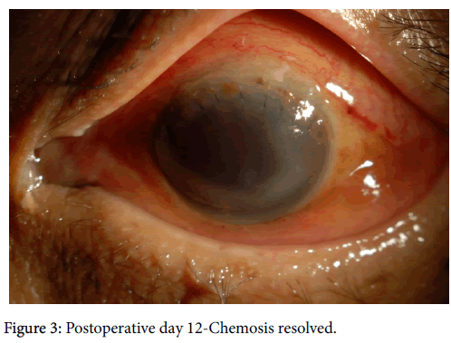 clinical-experimental-ophthalmology-Postoperative-day