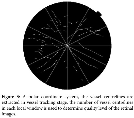 clinical-experimental-ophthalmology-polar-coordinate-system