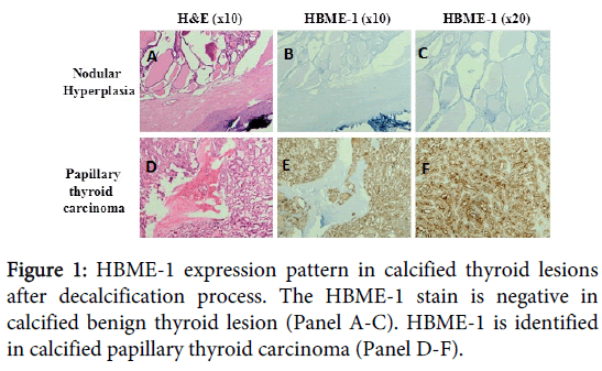 clinical-experimental-pathology-HBME-1-expression-pattern