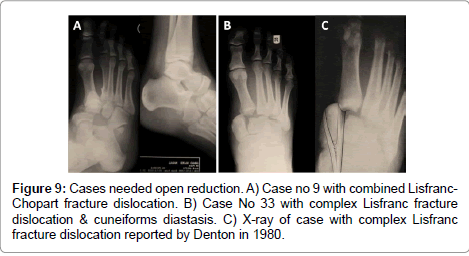 clinical-foot-ankle-Lisfranc-fracture