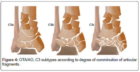 clinical-foot-ankle-articular-fragments
