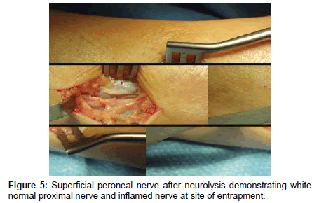 clinical-foot-ankle-proximal-nerve
