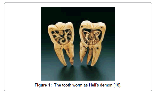 clinical-infectious-diseases-practice-tooth-worm