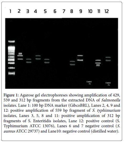 clinical-microbiology-Agarose-gel-electrophoreses
